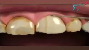 اصلاح طرح لبخند با لمینت دندان
