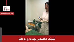تزریق چربی | کلینیک هلیا | 02122810089 | شماره 35