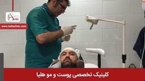 کاشت مو به روش میکروگرافت | کلینیک هلیا | 02122810089 |