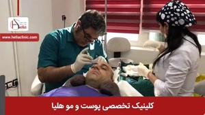 کاشت مو به روش میکروگرافت | کلینیک هلیا | 02122810089