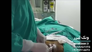 درمان کیست مویی بدون جراحی در ونک لیزر https://vanaklaser.ir/