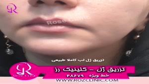 فیلم تزریق ژل | کلینیک رز | 02148679 | شماره 4