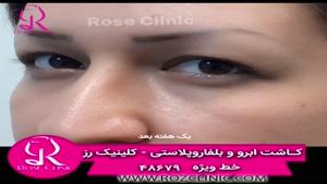 فیلم کاشت ابرو | کلینیک رز | 02148679 | شماره9