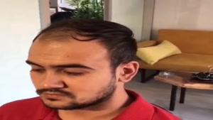 پروتز موی طبیعی و کلاه گیس های مردانه 09198858620