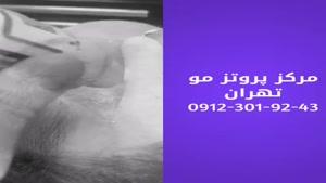 مرکز فروش پروتز مو مردانه و زنانه 09198858620