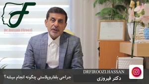 اطلاعاتی در مورد جراحی بلفاروپلاستی