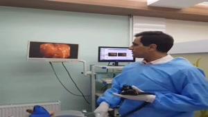 فیلم کولونوسکوپی کامل روده بزرگ و مشاهده دو پولیپ حیرت انگیز