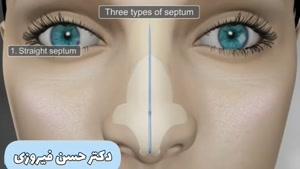 چگونگی جراحی بینی