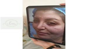 جراحی همزمان ترمیمی بینی و بلفاروپلاستی پلک و تزریق چربی