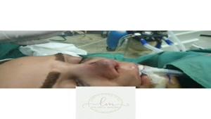 جراحی ترمیمی بینی همزمان با تزریق چربی صورت جهت زاویه سازی