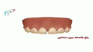از بین بردن فاصله بین دندان