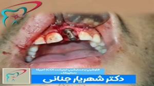 فیلم ایمپلنت دندان بالا