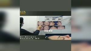 جراحی بینی با انحراف شدید