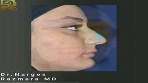 نمونه بینی طبیعی دو سال بعد از عمل