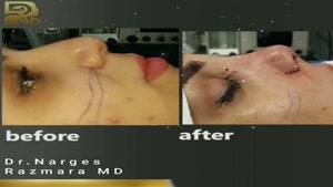 قبل و بلافاصله بعد از پایان جراحی بینی