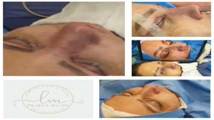 جراحی زیبایی بینی با پوست ضخیم و انحراف ظاهری که همزمان جراح