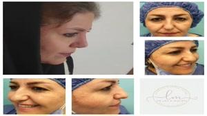 نتیجه جراحی همزمان بینی و پلکها فقط پنج ماه بعد از عمل