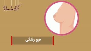 اولین علائم سرطان پستان را بشناسید