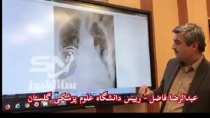 اظهارات شفاف عبدالرضا فاضل رئیس دانشگاه علوم پزشکی گلستان