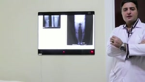 آمادگی های لازم برای عمل تعویض مفصل زانو
