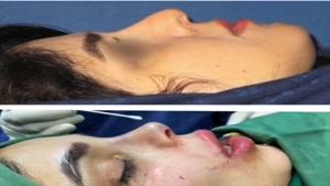 جراحی بینی با تزریق چربی لب گونه و شقیقه