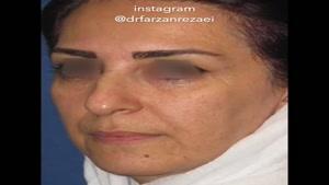 جراحی بینی به همراه تزریق چربی به صورت با میکروکانولا