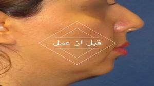 جراحی بینی همزمان با ساکشن غبغب و تزریق چربی