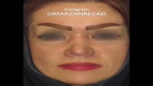 جراحی همزمان لیفت صورت با جراحی بینی و تزریق چربی