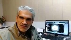 توضییحات پزشک متخصص ریه درباره شیوع ویروس کرونا