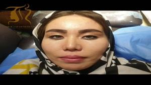 جراحی پلک آسیایی