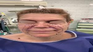 لیفت صورت و گردن و تزریق چربی