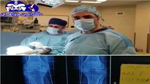 فیلم جراحی تعویض مفصل زانو در فرد جوان مبتلا به آرتریت