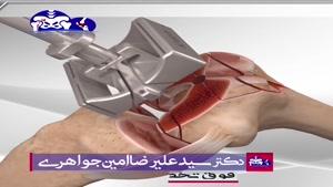 فیلم عمل واقعی تعویض مفصل زانو سمت راست