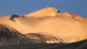 جراحی بینی همراه با تزریق چربی به چانه