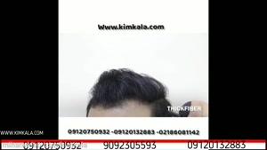 اسپری موی تقویت موی آقایان | 09120132883 | اسپری پرپشت کننده