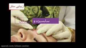 سابسیژن برای درمان جای جوش،اسکار،آبله،مرغان،پاکسازی پوست است