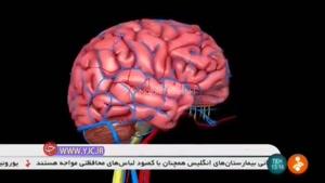 سکته مغزی ۲۵ بیمار مبتلا به ویروس کرونا