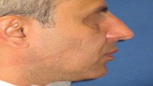 جراحی بینی همزمان با تزریق چربی