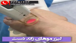 لیزر دست