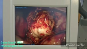 فیلم جراحی صرع با جراحی باز