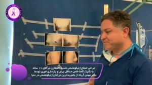 اصلاح سینه های نامتقارن مردان توسط دکتر مهدی آریانا