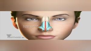 نحوه تغییر نوک بینی در جراحی بینی