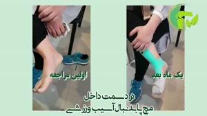 درد در مچ پا