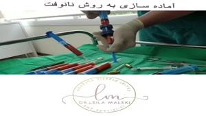 جوانسازی صورت با تزریق چربی به روش نانوفت
