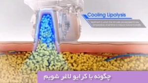 کرایولیپولیز 7