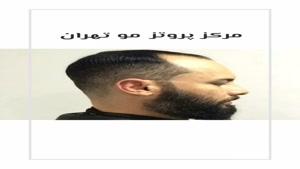 مرکز فروش کلاه گیس مردانه و زنانه تهران 09123019243