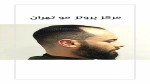 مرکز فروش کلاه گیس مردانه و زنانه تهران 09198858620