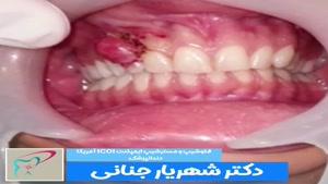 برداشتن ضایعه دندانی