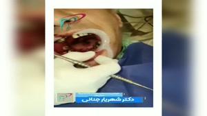 جراحی ۶ واحد ایمپلنت در فک پایین