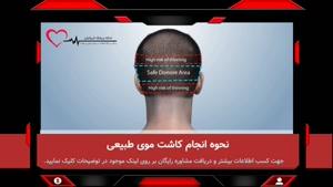 کاشت مو - بررسی مراحل، روش ها و هزینه پیوند مو